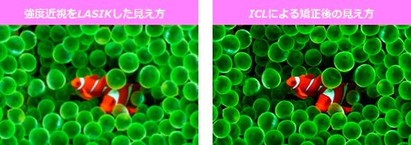 ICLとLASIKのコントラストイメージ