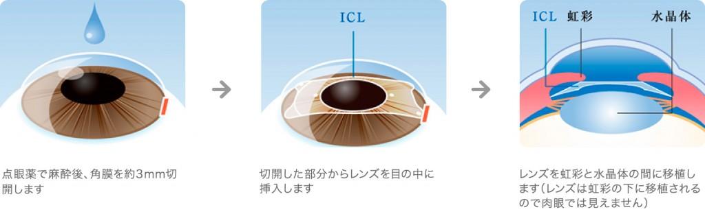 ICLの手術方法解説図