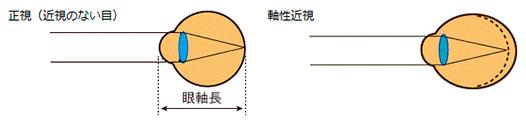 眼軸長についての解説図