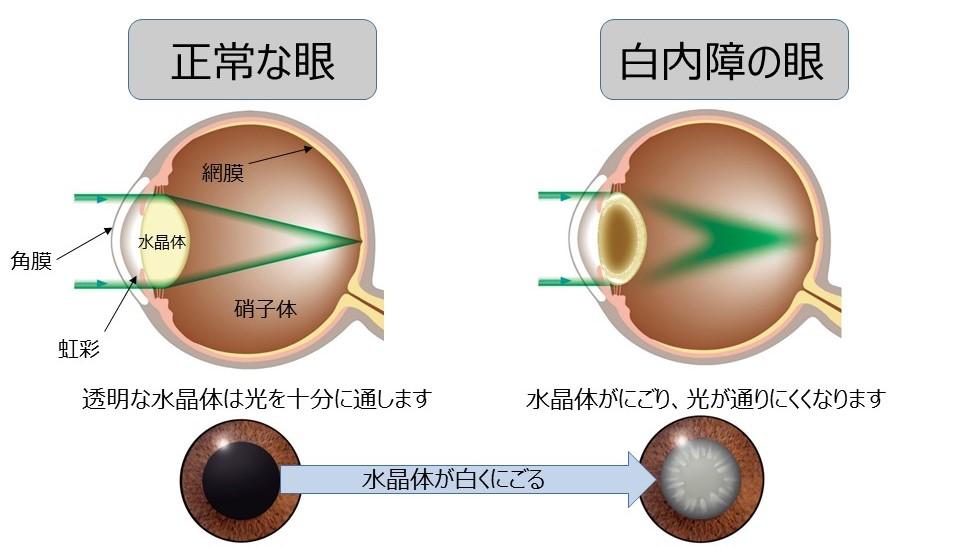 正常な眼と白内障の眼
